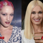 Gwen Stefani Before and After Cosmetic Surgery