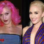 Gwen Stefani Before and After Surgery Procedure