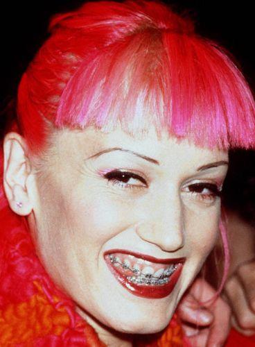 Gwen Stefani Cosmetic Transformation