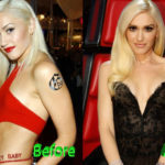 Gwen Stefani Plastic Surgery Before and After 150x150