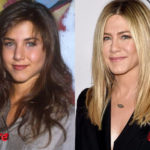 Jennifer Aniston Before and After NoseJob Surgery