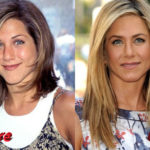 Jennifer Aniston Nose Job Before and After