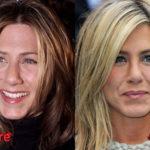 Jennifer Aniston Rhinoplasty Before and After