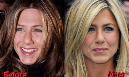 Jennifer Aniston Nose Job: Not A Secret