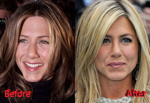 Jennifer Aniston Rhinoplasty Before and After 630x433