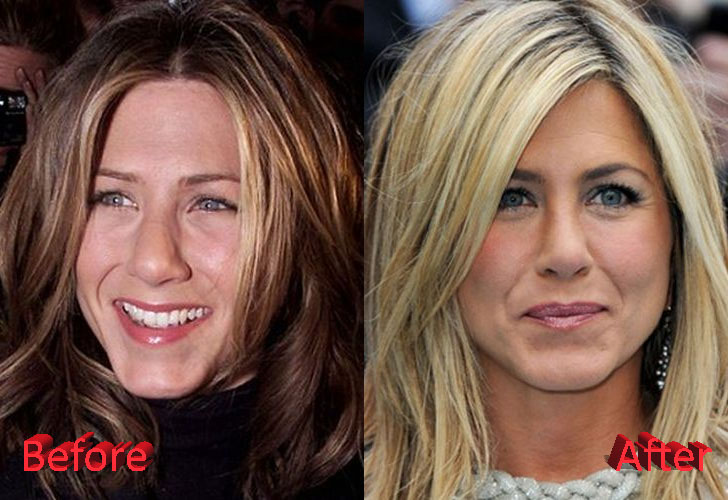 Jennifer Aniston Rhinoplasty Before and After