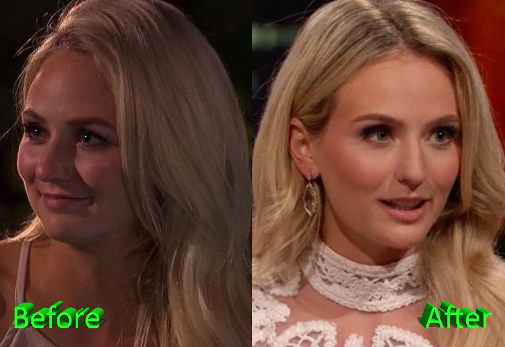 Lauren Bushnell Before and After Lip Job