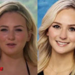 Lauren Bushnell Plastic Surgery Before and After