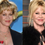 Melanie Griffith Before and After Cosmetic Surgery 150x150