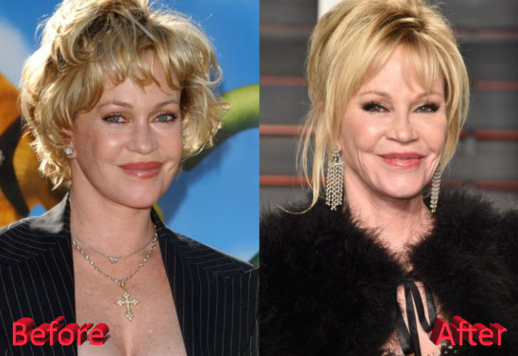 Melanie Griffith Before and After Cosmetic Surgery