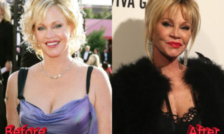 Is Melanie Griffith Plastic Surgery a Success?
