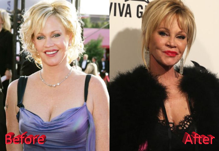 Melanie Griffith Before and After Surgery Transformation