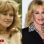 Melanie Griffith Plastic Surgery Before and After