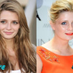 Mischa Barton Before and After Cosmetic Surgery