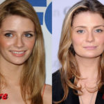 Mischa Barton Plastic Surgery Before and After