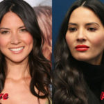 Olivia Munn Before and After Cosmetic Surgery