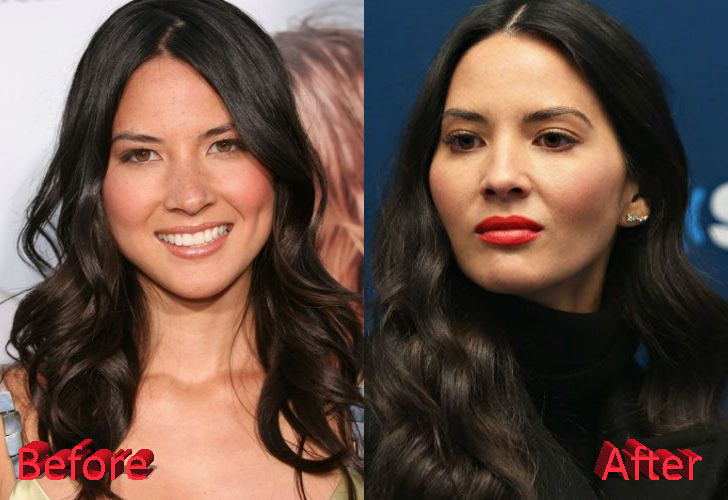 Olivia Munn Plastic Surgery: Just Gossips?