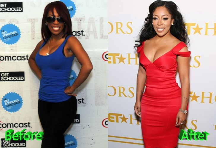 K Michelle Before and After Butt Implants