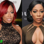 K Michelle Before and After Cosmetic Surgery 150x150