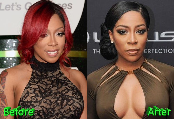 K Michelle Before and After Cosmetic Surgery