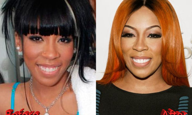 K Michelle Plastic Surgery Speculations
