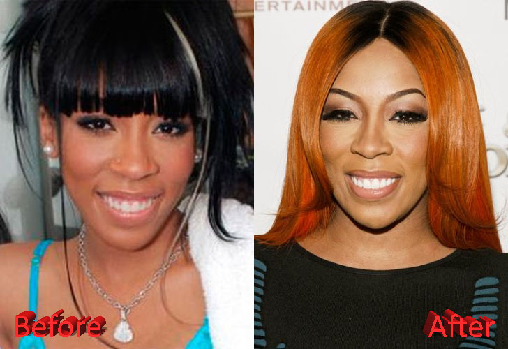 K Michelle Plastic Surgery Speculations K Michelle Before And After