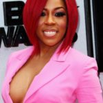 K Michelle Surgery Procedure 150x150