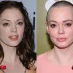 Rose McGowan Before and After Cosmetic Procedure