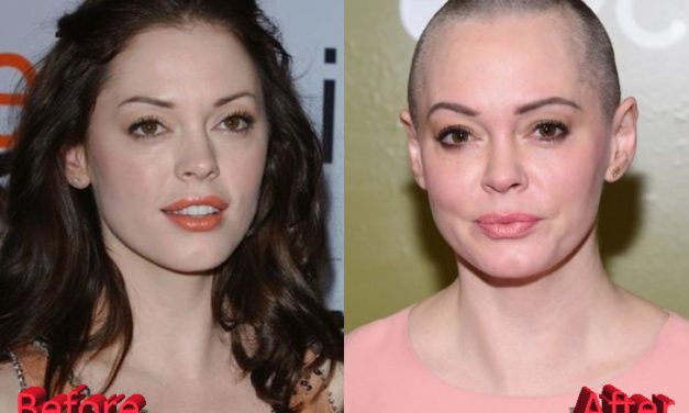 Rose McGowan Plastic Surgery: A Necessary Move