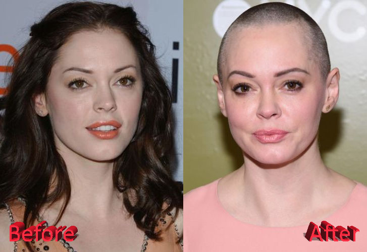 Rose Mcgowan Car Accident Injuries