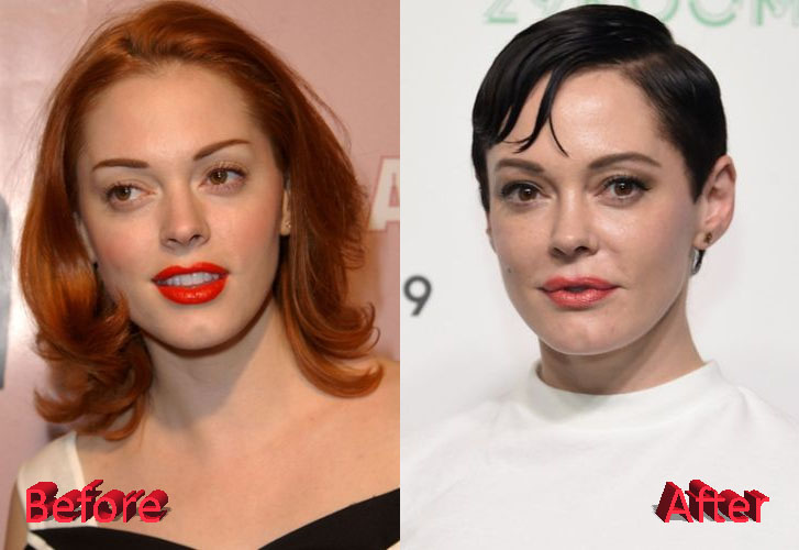 Rose McGowan Before and After Cosmetic Surgery
