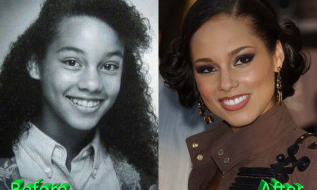 Alicia Keys Nose Job Surgery Procedure