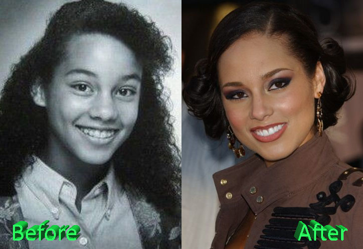 Alicia Keys Before and After Cosmetic Surgery