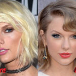 Taylor Swift Before and After Cosmetic Procedure
