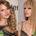 Taylor Swift Before and After Cosmetic Surgery