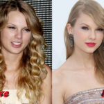 Taylor Swift Plastic Surgery Before and After