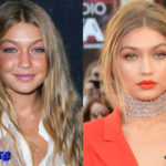 Gigi Hadid Before and After Surgery Procedure