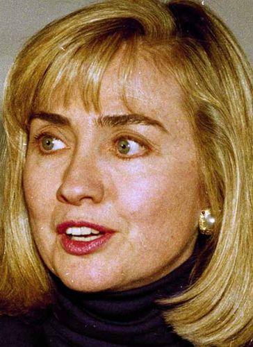 Hillary Clinton Before Plastic Surgery