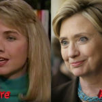 Hillary Clinton Before and After Cosmetic Procedure 150x150