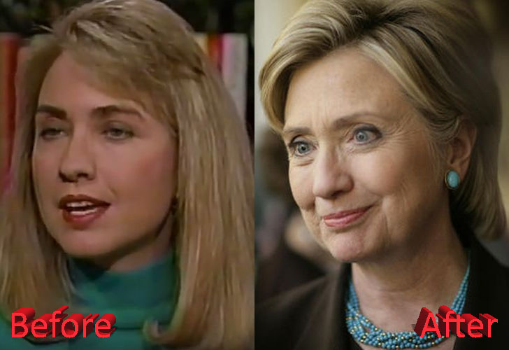 Hillary Clinton Before and After Cosmetic Procedure
