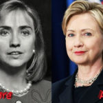 Hillary Clinton Before and After Cosmetic Surgery 150x150