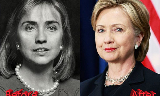 Hillary Clinton Plastic Surgery: A Presidential Boost