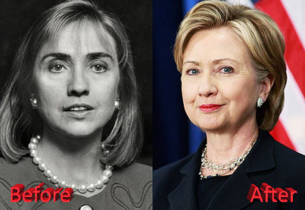 Hillary Clinton Before and After Cosmetic Surgery 630x433