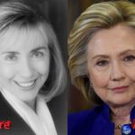 Hillary Clinton plastic surgery before and after