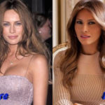 Melania Trump before and after cosmetic surgery