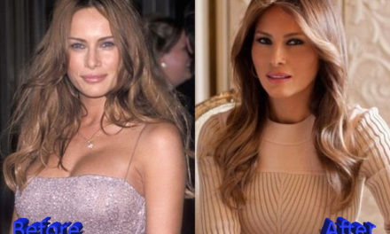Melania Trump Plastic Surgery: A First Botox Lady?