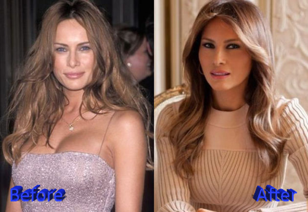 Melania Trump Before and After Cosmetic Surgery 630x433