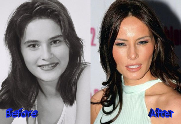 Melania Trump Before and After Surgery Procedure 630x433