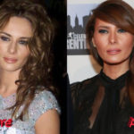 Melania Trump Plastic Surgery Before and After 150x150