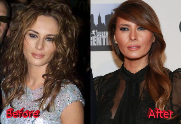 Melania Trump Plastic Surgery Before and After 630x433